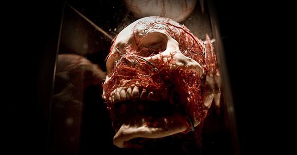"""Aqui é o nosso crânio e essas """"linhas"""" vermelhas são as veias :)"""